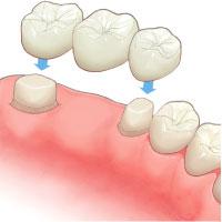 補綴歯科治療イメージ(入れ歯、ブリッジ、クラウン)